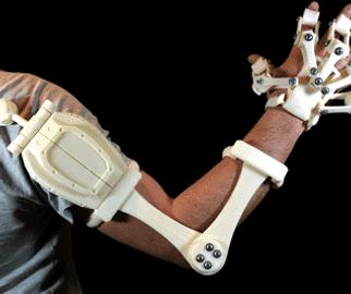 PEEK-3D-Printed-Orthopedic-Arm.png