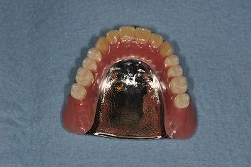 総入れ歯(金属床)