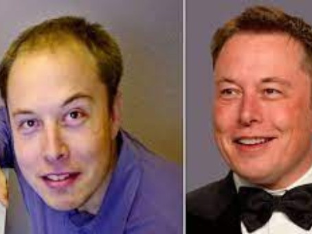 What is the secret behind Elon Musk's hair transplant?