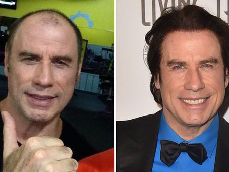 The Best Celebrity Hair Transplant Results