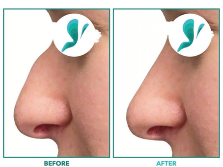 What you need to know about rhinoplasty in Turkey?