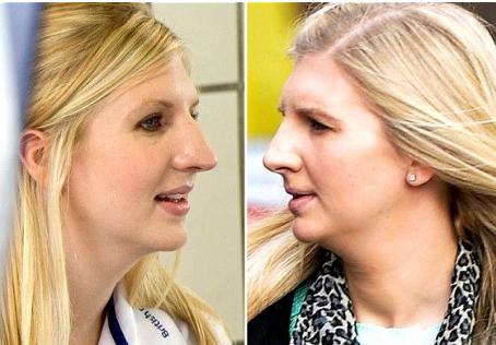 Celebrity Nose Job