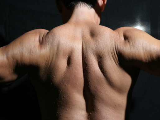 How can I improve my posture?: understanding muscles