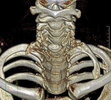 Normal Variant: The Cervical Rib