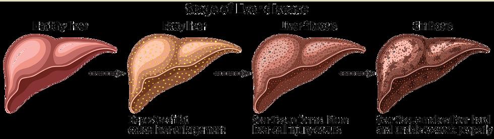 opini kedua   Japan   Liver Cirrhosis/Fatty Liver