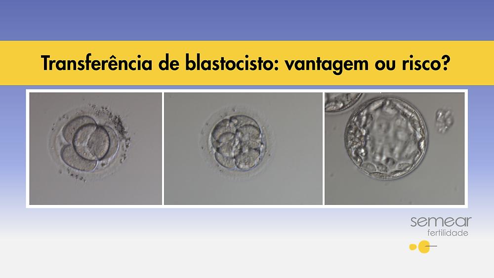 Fertilização in vitro, FIV, ICSI, embrião, blastocisto