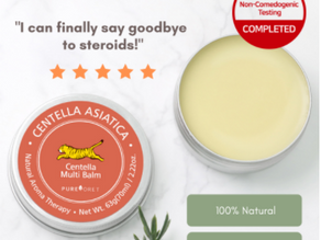 How We Treated Childhood Eczema Without Using Steroids