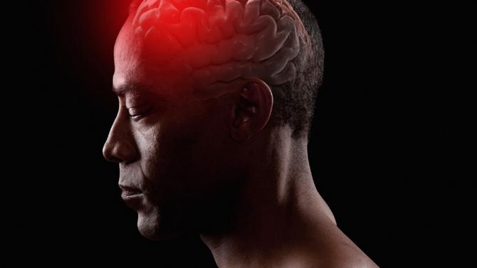 What is a Ruptured Brain Aneurysm?
