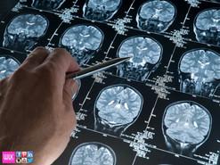 Neurologist Clinic Manila Dr Winnie Lim Khoo