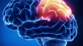 Do you know that more Millennials are having a stroke?