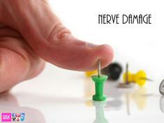 Nerve Damage neurologist Doctor winnie lim khoo