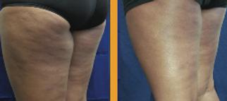 Cellulit treatment with BodyFx