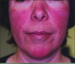 Acne rosacea pr-treatment with IPL