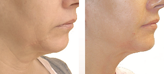 Firming of neck and jawline laxity with Forma