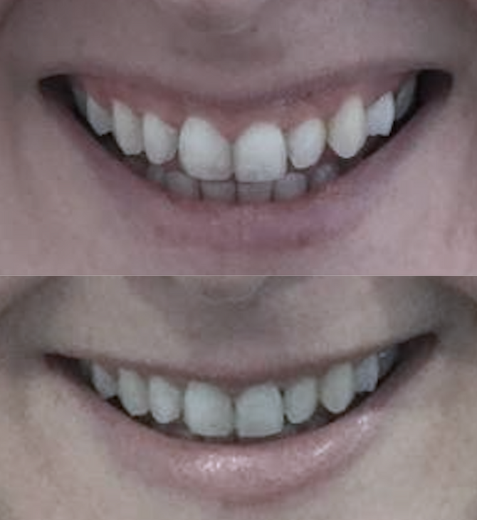 An easy solution for gummy smile