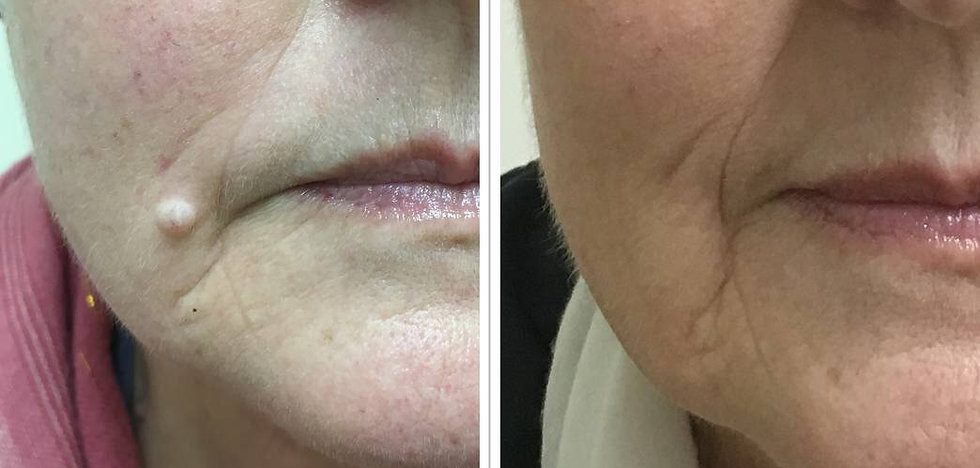 Mole Removal   Isle of Wight   Orchardcosmetic