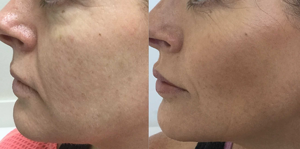 Cheek lift | dermal filler