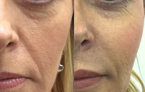 Cheek lift with dermal filler