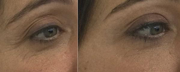 Eyebrow lift | Botox