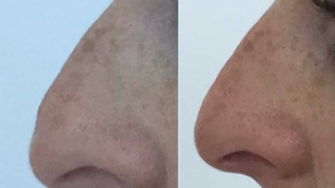 Filler Rhinoplasty