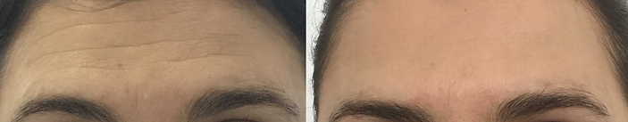 Botox | forehead lines