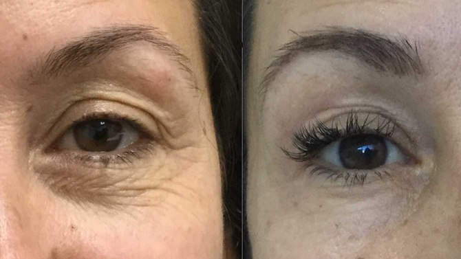 Making tired eyes sparkle and dance again doesn't need to involve surgery