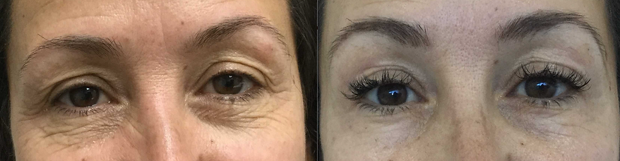 Bringing back sparkle and dance to tired eyes. Eyelid Felc blepharoplasty, no cutting, no stitches