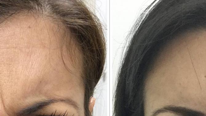 Botox effect prolongs over time