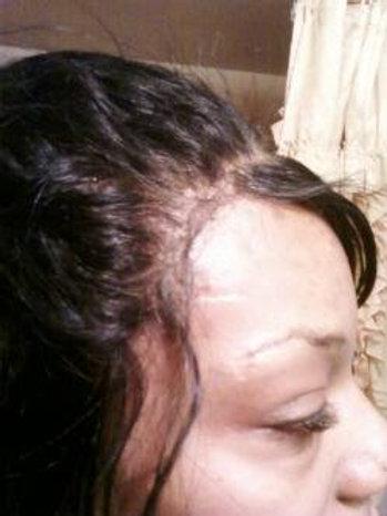Custom Hair line