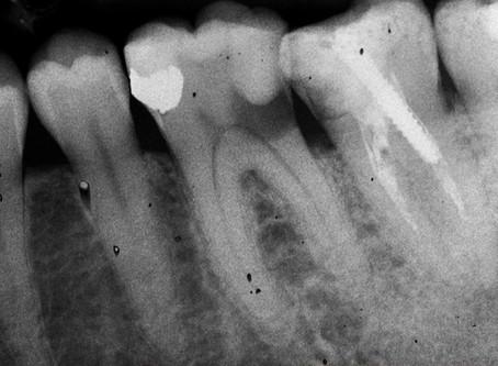 Il Ritrattamento Endodontico
