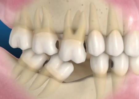 Cosa accade quando si perde un elemento dentario?