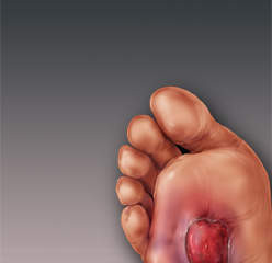 The Diabetic Foot - Chronic Foot Wounds