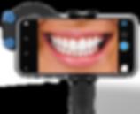 front_dental_grs.png