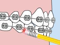 poking-wire.jpg