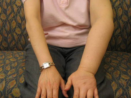 Lymphedema, The Big Picture