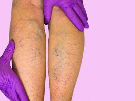Chronic Venous Insufficiency, The Big Picture