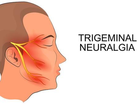 Deel 2: (Onverklaarbare) hoofdpijn, aangezichtspijn, migraine en de trigeminale zenuw