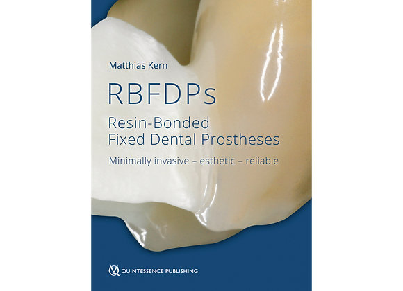 Resin-Bonded Fixed Dental Prostheses