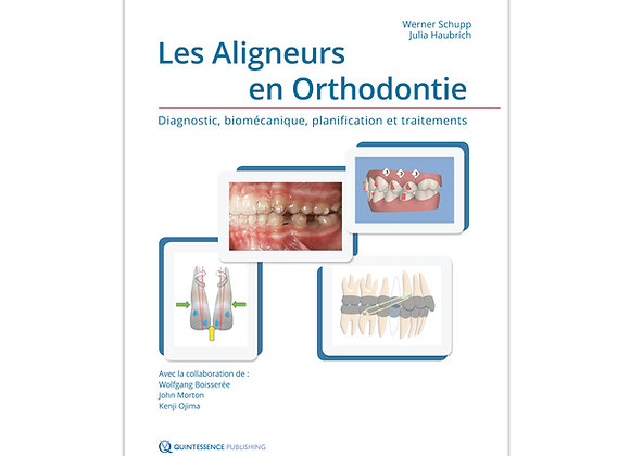 Les Aligneurs en Orthodontie