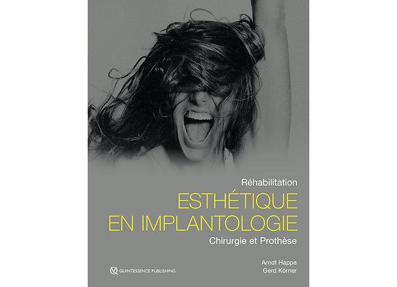 Réhabilitation esthétique en implantologie