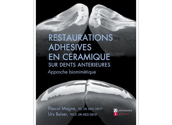 Restaurations Adhésives en Céramique