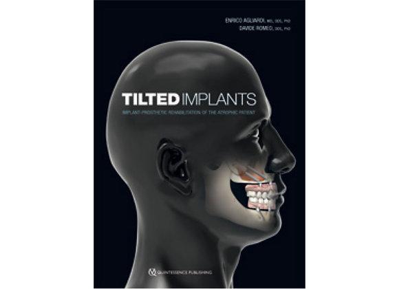 Tilted Implants