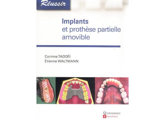 Implants et Prothèse Partielle Amovible