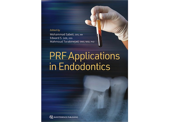 PRF Applications in Endodontics