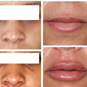 Redução de Olheiras e Preenchimento Labial | Easydente Odontologia Especializada