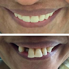 Reabilitação Orofacial | Easydente Odontologia Especializada