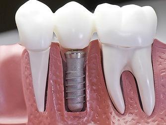 implante_dental.jpg
