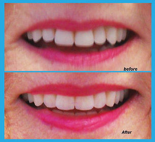 Dental Work Compare 1.jpg