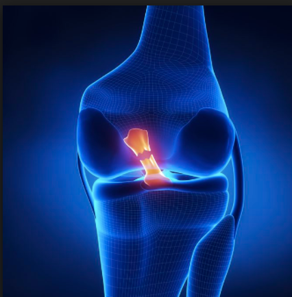The Prevalence of ACL Tears, the Q-angle, and the Importance of the Single Leg Squat