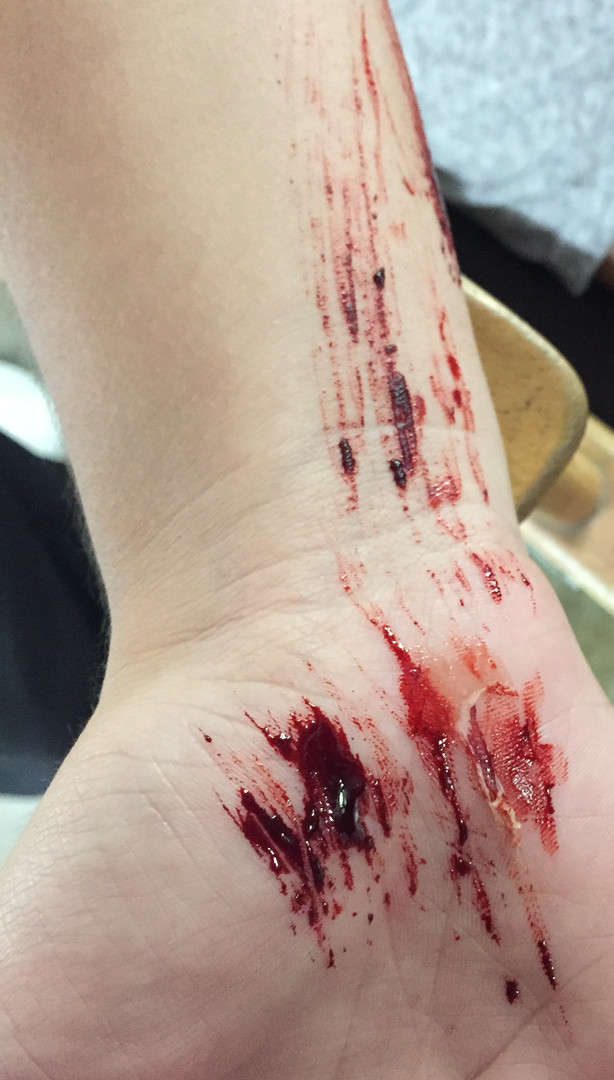 Fresh Scrape Wound